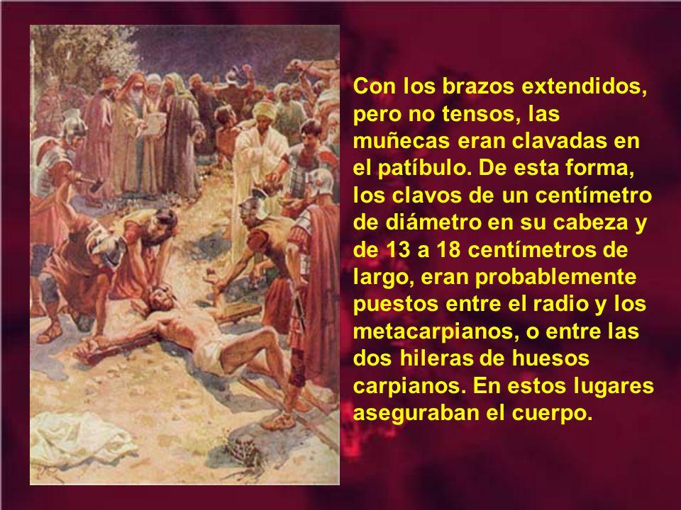 Antes de comenzar el suplicio de la crucifixión, era costumbre dar una bebida narcótica (vino, con mirra, e incienso) a los condenados, con el fin de