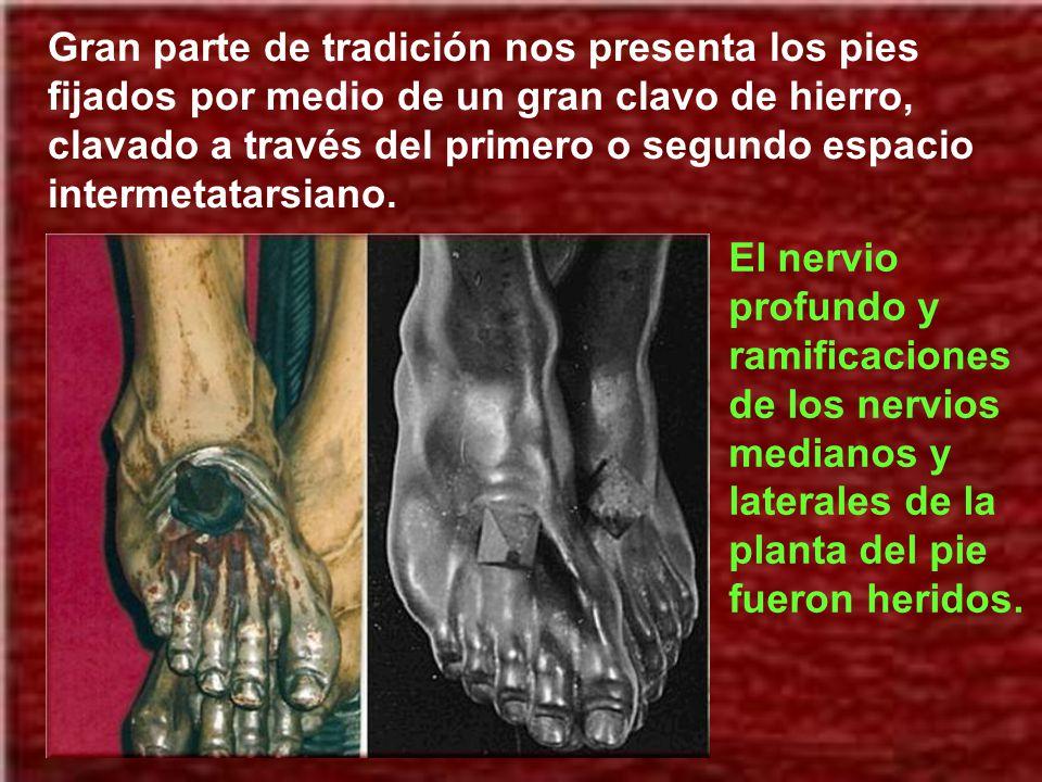 Si se colocasen los clavos en las palmas de las manos se desgarrarían fácilmente ya que no tenían un soporte óseo importante. El clavo penetrado destr