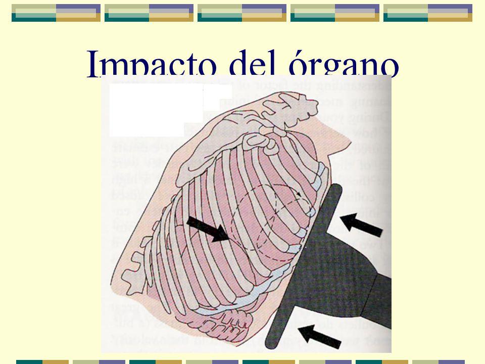 Impacto del órgano