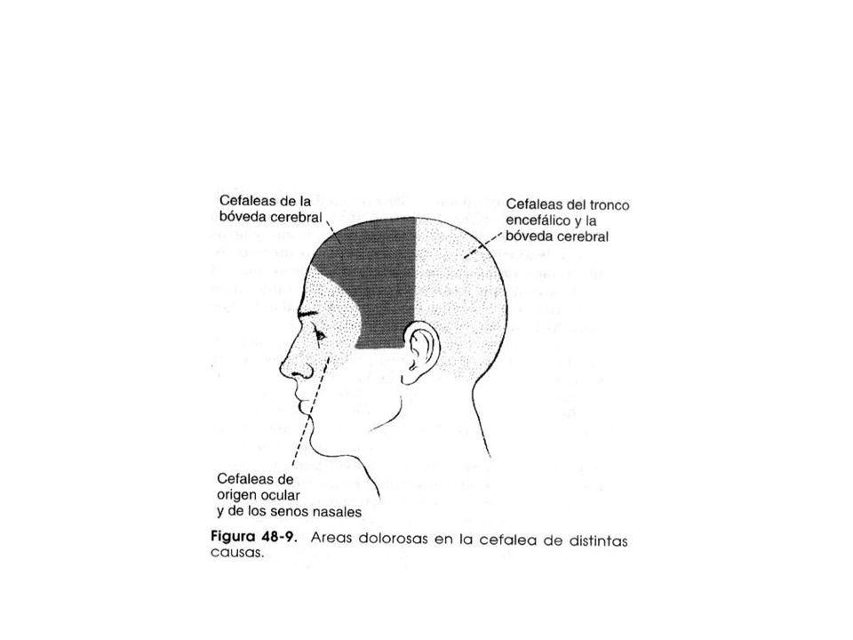 Clases de Cefalea Extracraneal Cefalea por espasmo muscular espasmo continuo de m. del c.cabelludo y cuello Cefalea por irritación de estructuras nasa