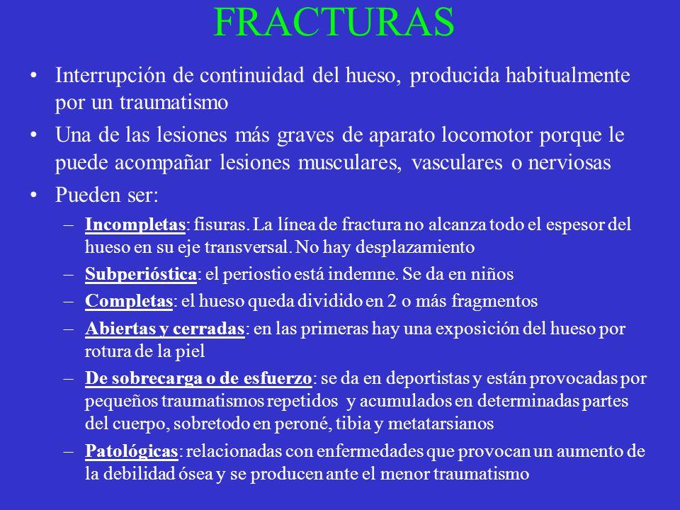 FRACTURAS Interrupción de continuidad del hueso, producida habitualmente por un traumatismo Una de las lesiones más graves de aparato locomotor porque