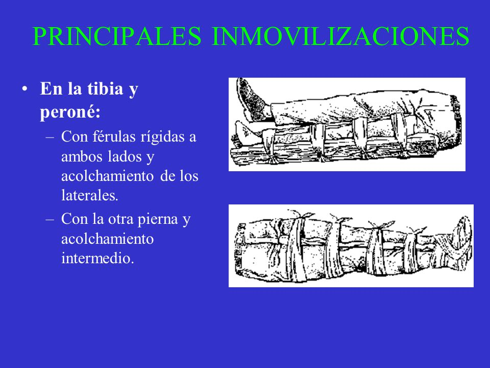 PRINCIPALES INMOVILIZACIONES En la tibia y peroné: –Con férulas rígidas a ambos lados y acolchamiento de los laterales. –Con la otra pierna y acolcham