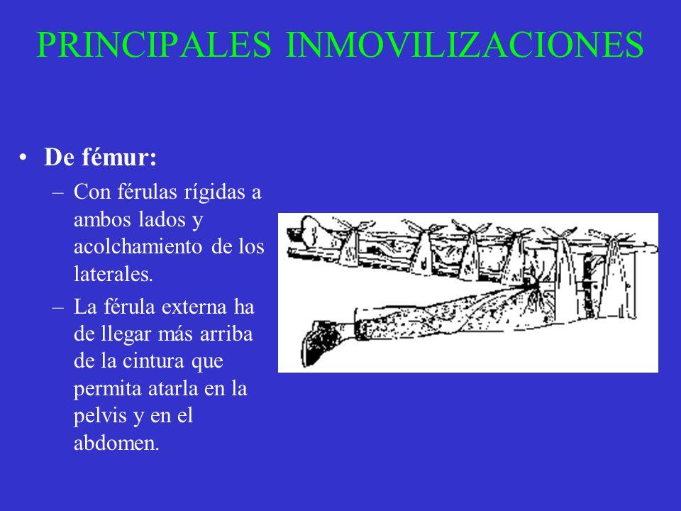 PRINCIPALES INMOVILIZACIONES De fémur: –Con férulas rígidas a ambos lados y acolchamiento de los laterales. –La férula externa ha de llegar más arriba