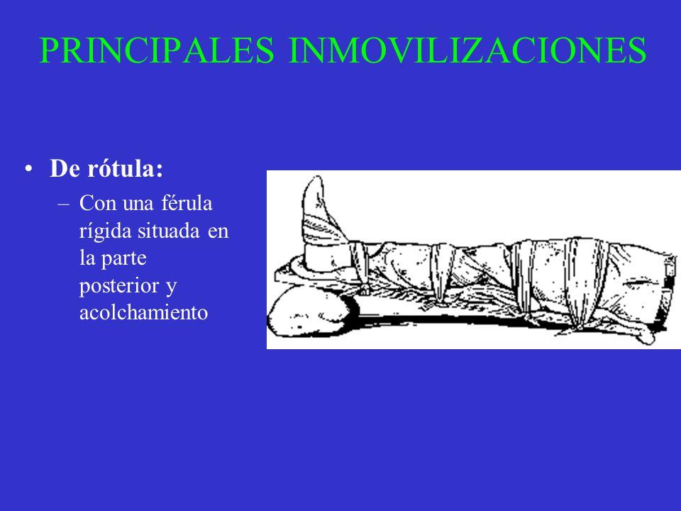 PRINCIPALES INMOVILIZACIONES De rótula: –Con una férula rígida situada en la parte posterior y acolchamiento