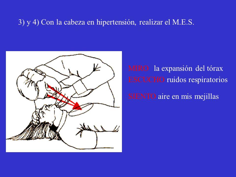 3) y 4) Con la cabeza en hipertensión, realizar el M.E.S. MIRO la expansión del tórax ESCUCHO ruidos respiratorios SIENTO aire en mis mejillas
