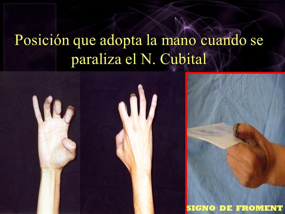 Posición que adopta la mano cuando se paraliza el N. Cubital SIGNO DE FROMENT