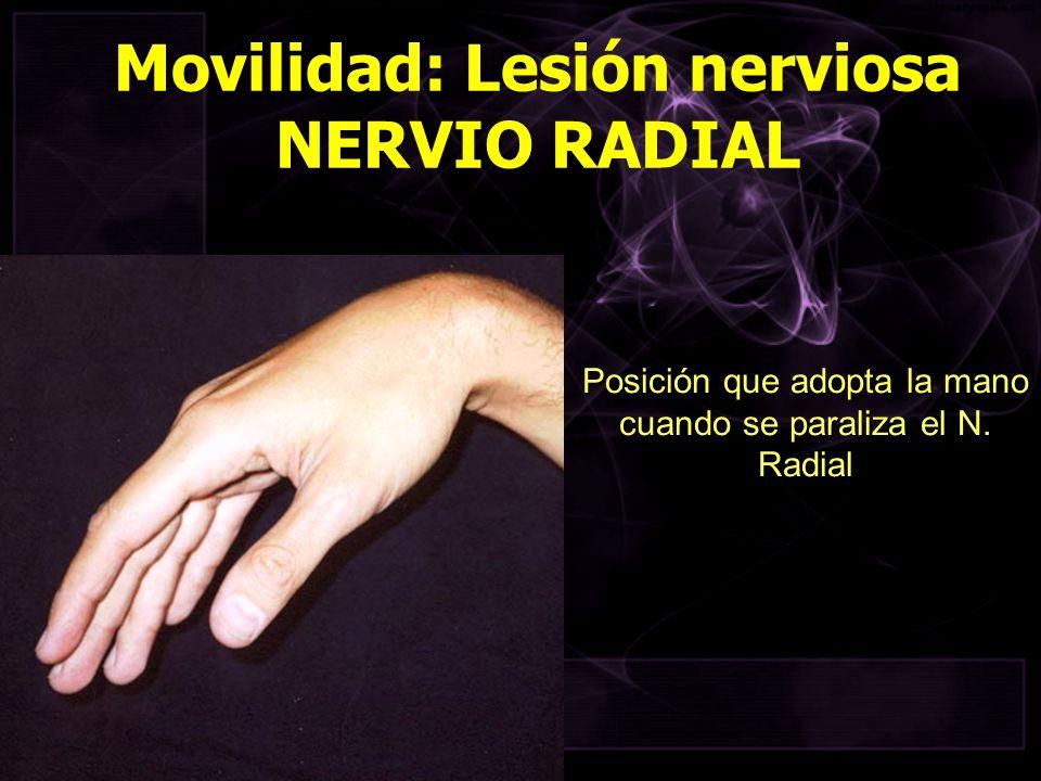 Posición que adopta la mano cuando se paraliza el N. Radial Movilidad: Lesión nerviosa NERVIO RADIAL
