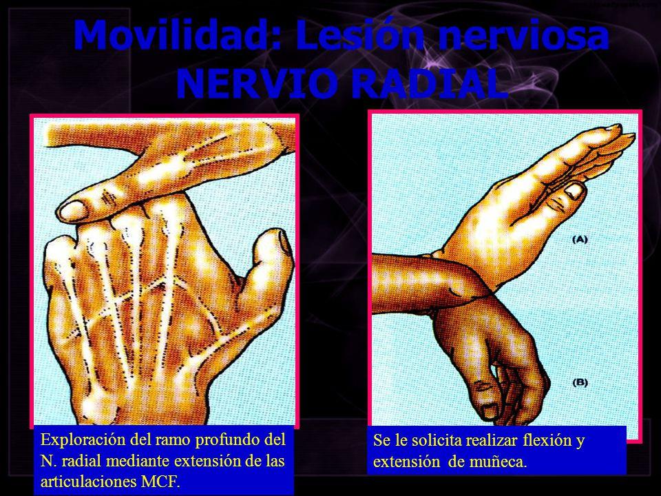Exploración del ramo profundo del N. radial mediante extensión de las articulaciones MCF. Movilidad: Lesión nerviosa NERVIO RADIAL Se le solicita real