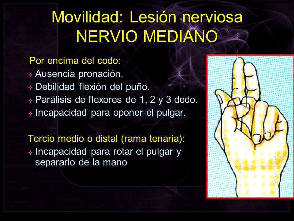 Por encima del codo: Por encima del codo: Ausencia pronación. Ausencia pronación. Debilidad flexión del puño. Debilidad flexión del puño. Parálisis de