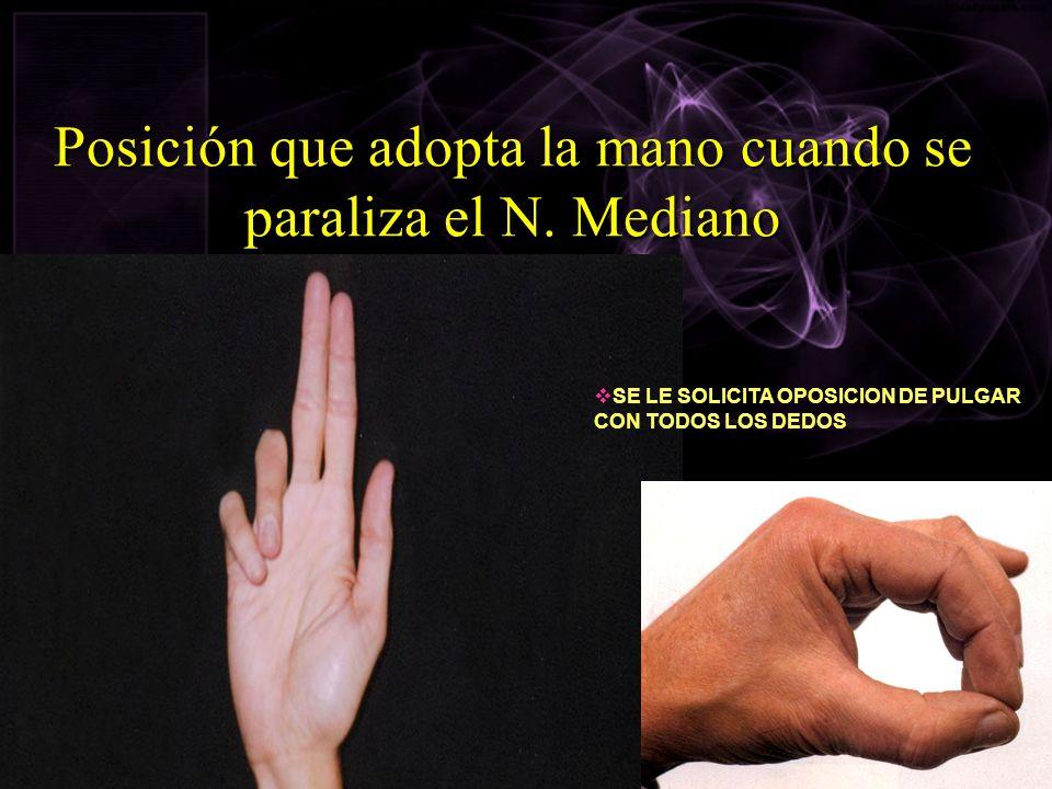 Posición que adopta la mano cuando se paraliza el N. Mediano SE LE SOLICITA OPOSICION DE PULGAR CON TODOS LOS DEDOS