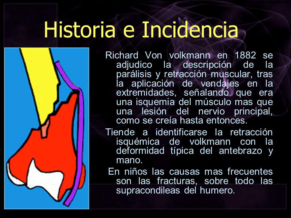 Historia e Incidencia Richard Von volkmann en 1882 se adjudico la descripción de la parálisis y retracción muscular, tras la aplicación de vendajes en