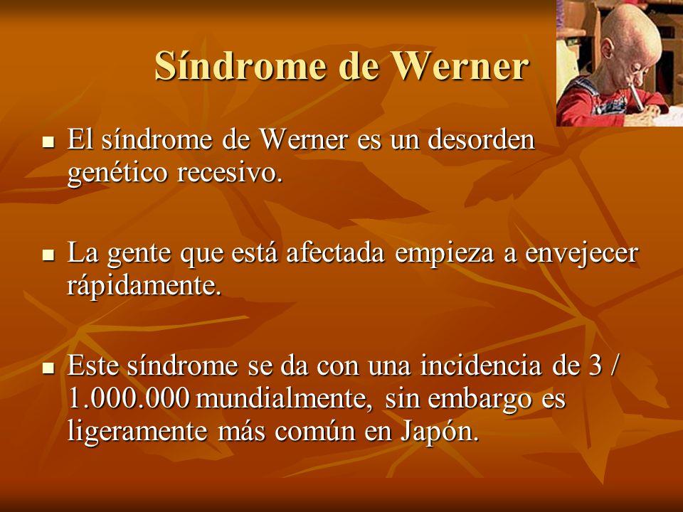 Síndrome de Werner El síndrome de Werner es un desorden genético recesivo. El síndrome de Werner es un desorden genético recesivo. La gente que está a