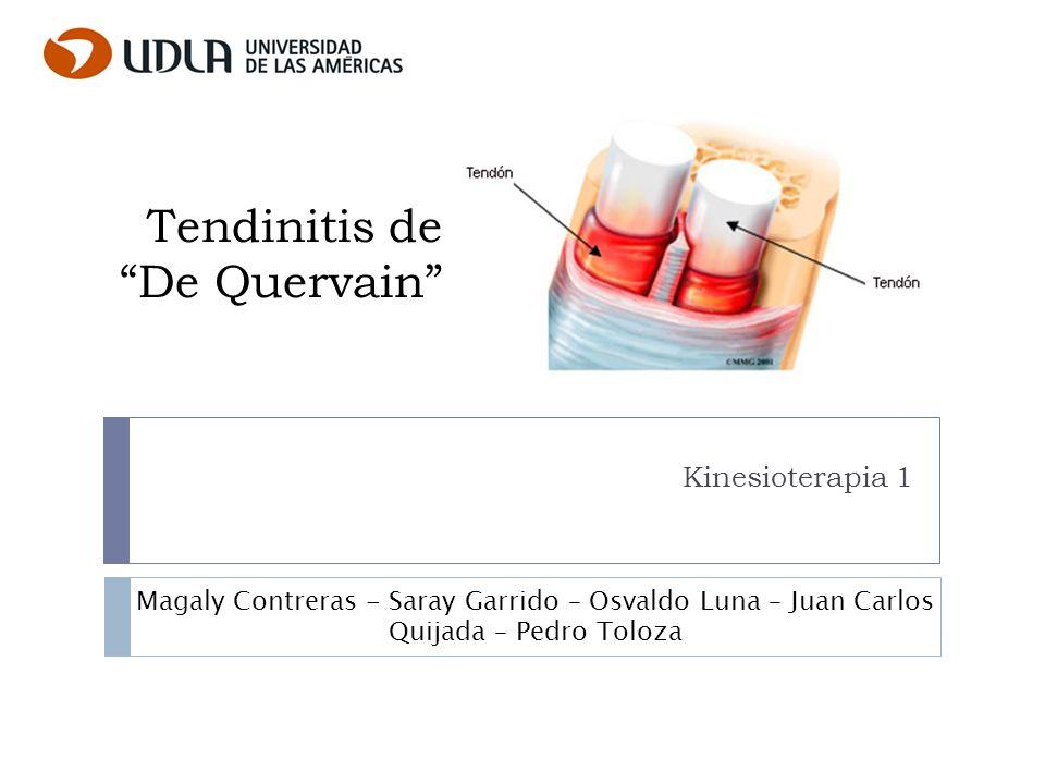 Tendinitis de De Quervain Kinesioterapia 1 Magaly Contreras - Saray Garrido – Osvaldo Luna – Juan Carlos Quijada – Pedro Toloza