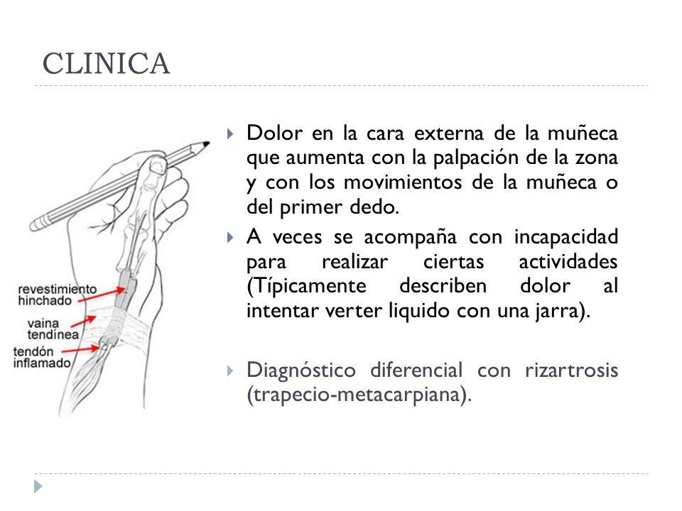 CLINICA Dolor en la cara externa de la muñeca que aumenta con la palpación de la zona y con los movimientos de la muñeca o del primer dedo. A veces se