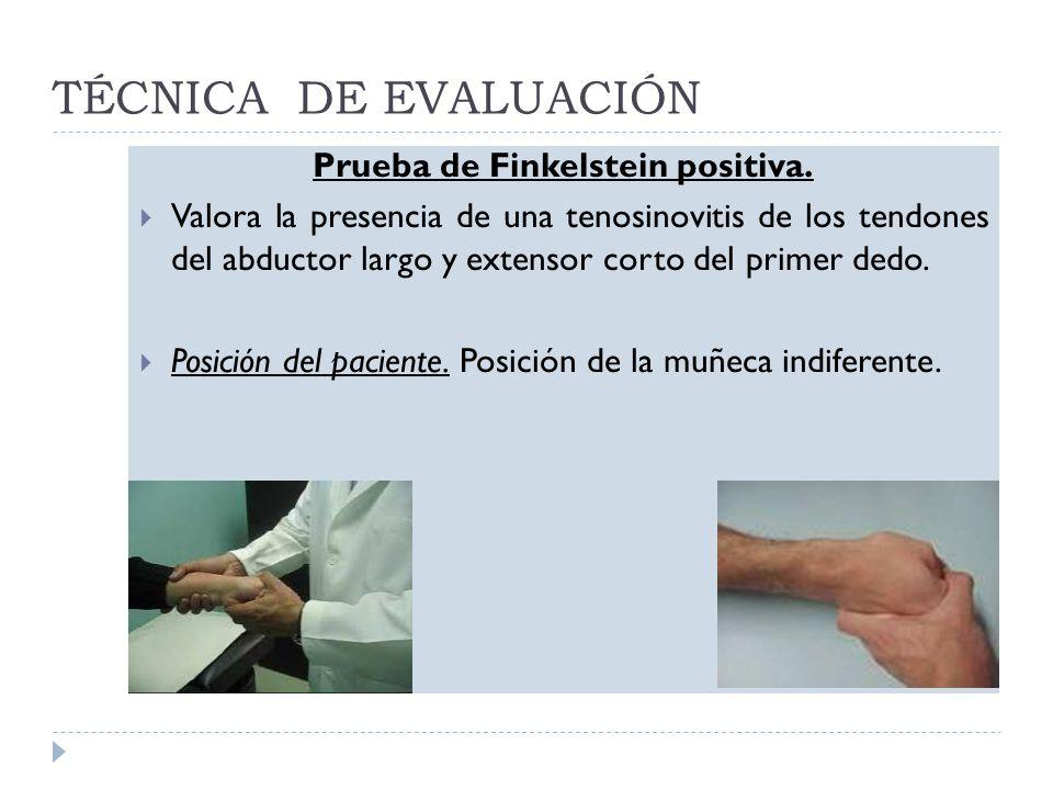 TÉCNICA DE EVALUACIÓN Prueba de Finkelstein positiva. Valora la presencia de una tenosinovitis de los tendones del abductor largo y extensor corto del