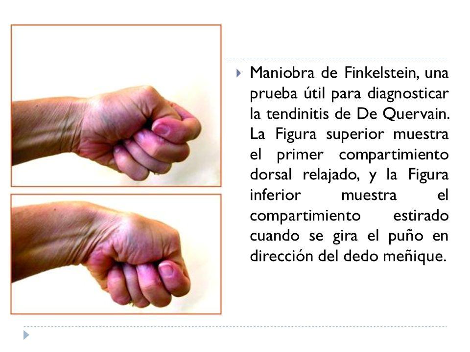Maniobra de Finkelstein, una prueba útil para diagnosticar la tendinitis de De Quervain. La Figura superior muestra el primer compartimiento dorsal re