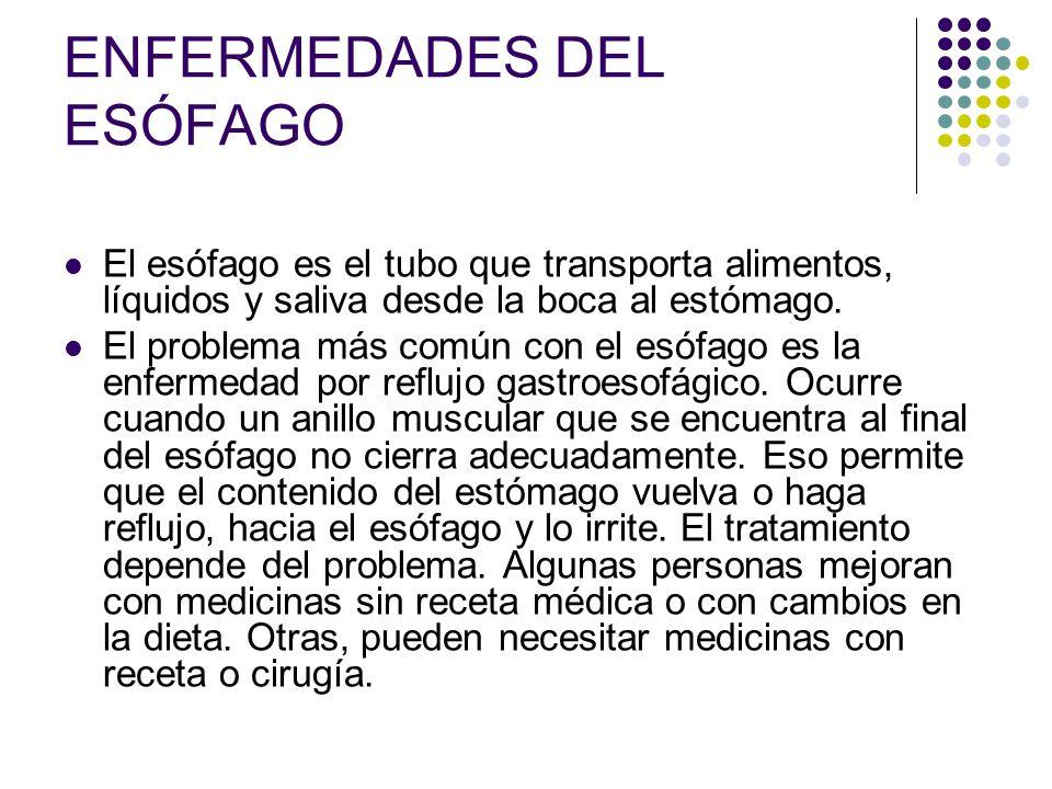 ENFERMEDADES DEL ESÓFAGO El esófago es el tubo que transporta alimentos, líquidos y saliva desde la boca al estómago. El problema más común con el esó