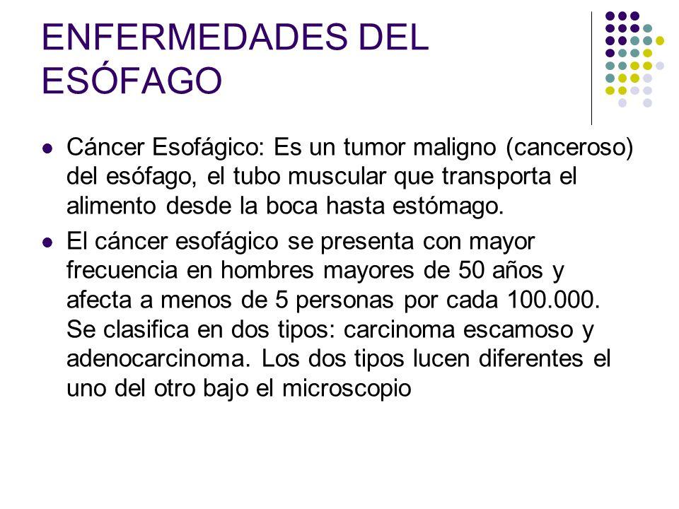 ENFERMEDADES DEL ESÓFAGO Cáncer Esofágico: Es un tumor maligno (canceroso) del esófago, el tubo muscular que transporta el alimento desde la boca hast