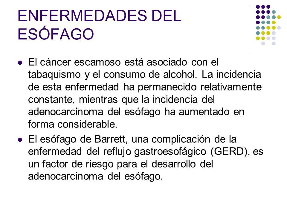 ENFERMEDADES DEL ESÓFAGO El cáncer escamoso está asociado con el tabaquismo y el consumo de alcohol. La incidencia de esta enfermedad ha permanecido r