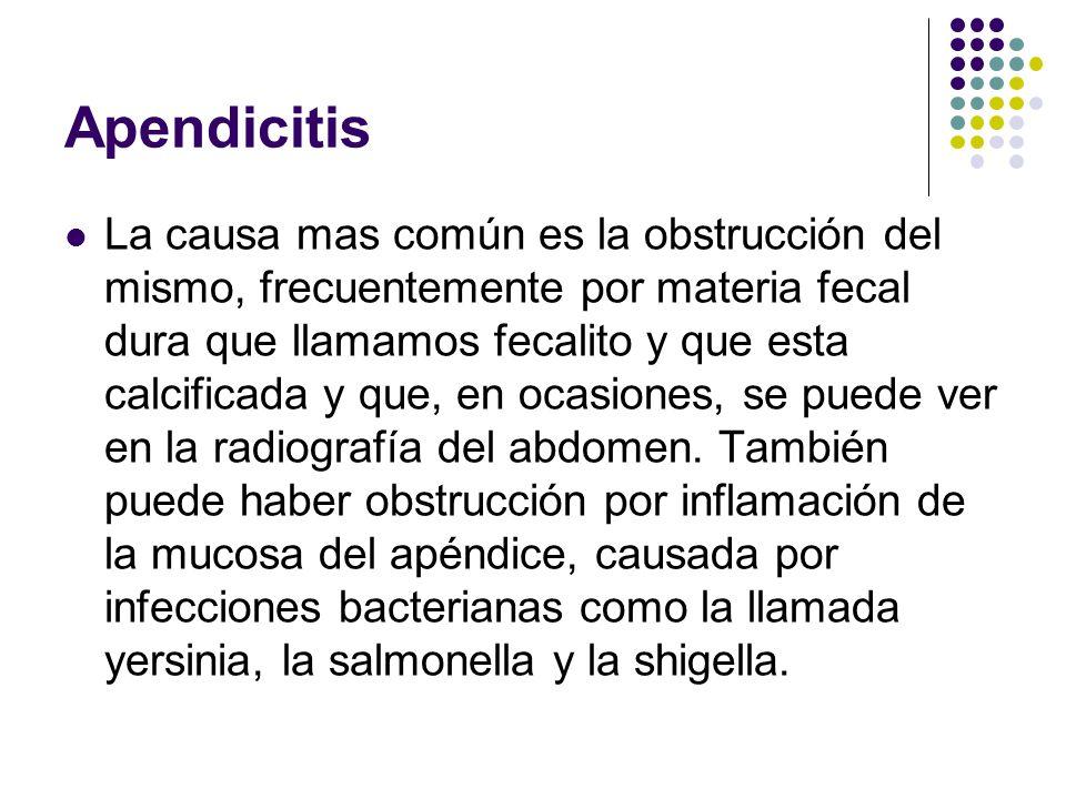 Apendicitis La causa mas común es la obstrucción del mismo, frecuentemente por materia fecal dura que llamamos fecalito y que esta calcificada y que,