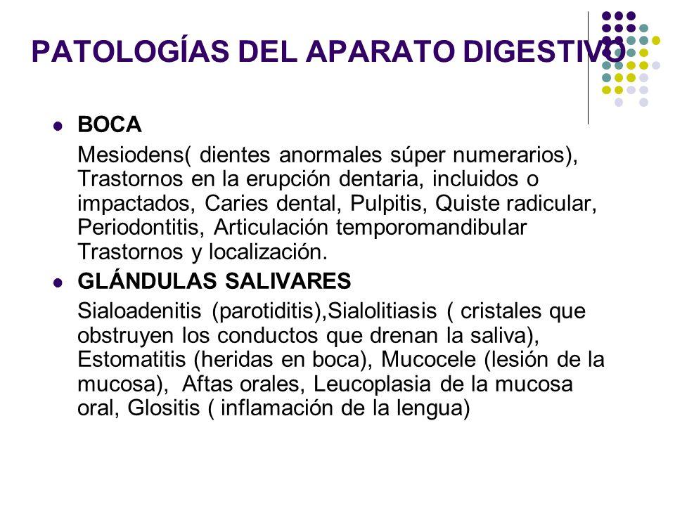 PATOLOGÍAS DEL APARATO DIGESTIVO ESÓFAGO Acalasia (falta de relajación del esfínter esofágico inferior y la aperistalsis del cuerpo esofágico durante la deglución), Esofagitis (por reflujo), Ulcera de esófago, Estenosis del esófago, Divertículo de esófago adquirido (de Zenker ) (protuberancias anormales como dedos).Síndrome Mallory-Weis laceraciones no penetrantes de la mucosa del esófago distal o del estómago proximal, Reflujo esofágico.