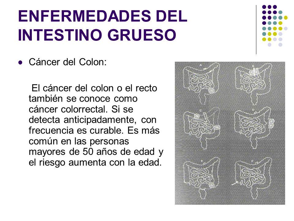 ENFERMEDADES DEL INTESTINO GRUESO Cáncer del Colon: El cáncer del colon o el recto también se conoce como cáncer colorrectal. Si se detecta anticipada
