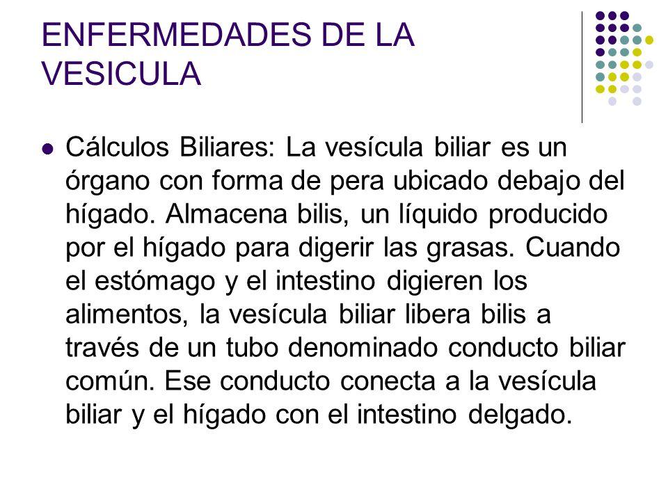 ENFERMEDADES DE LA VESICULA Cálculos Biliares: La vesícula biliar es un órgano con forma de pera ubicado debajo del hígado. Almacena bilis, un líquido