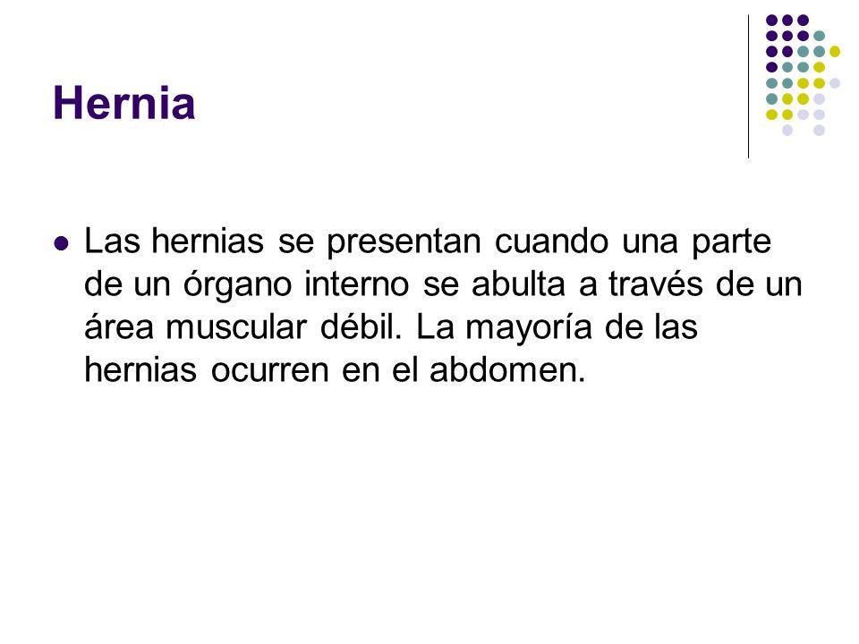 Hernia Las hernias se presentan cuando una parte de un órgano interno se abulta a través de un área muscular débil. La mayoría de las hernias ocurren