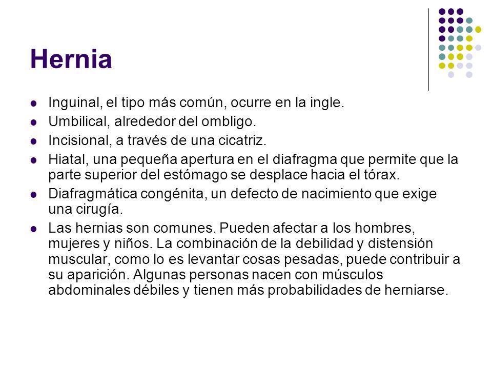 Hernia Inguinal, el tipo más común, ocurre en la ingle. Umbilical, alrededor del ombligo. Incisional, a través de una cicatriz. Hiatal, una pequeña ap