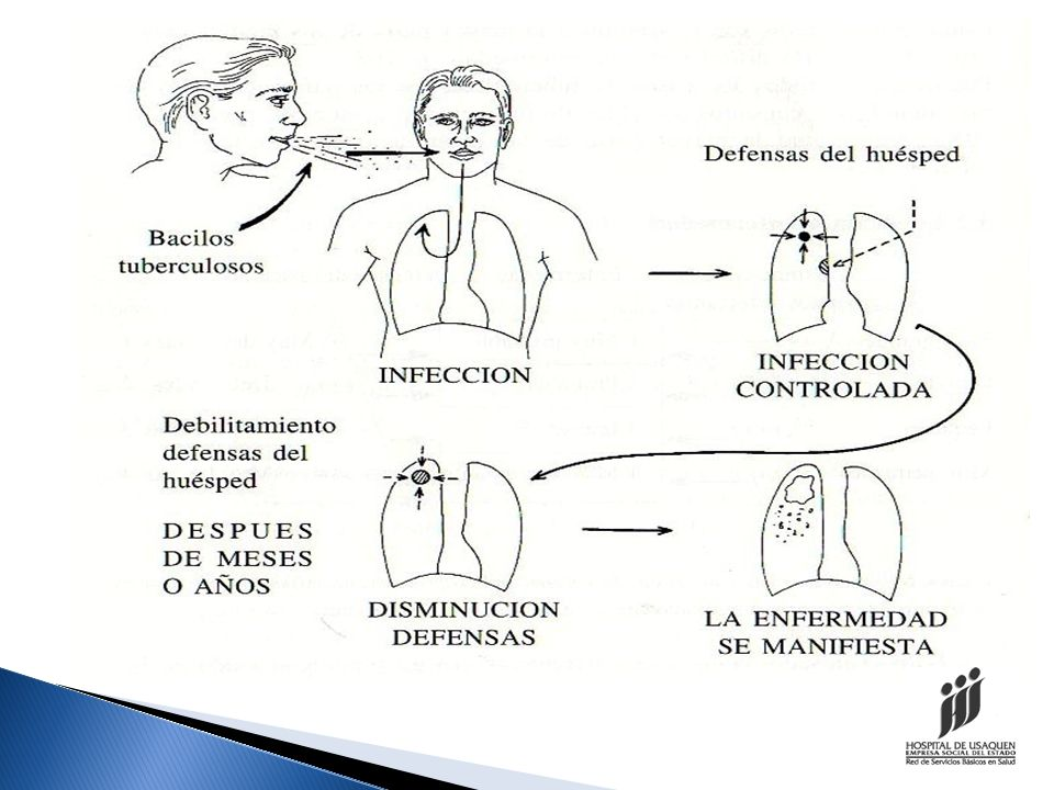 ¿Cuáles son sus síntomas? Tos con expectoración por más de 15 días SINTOMATICO RESPIRATORIO