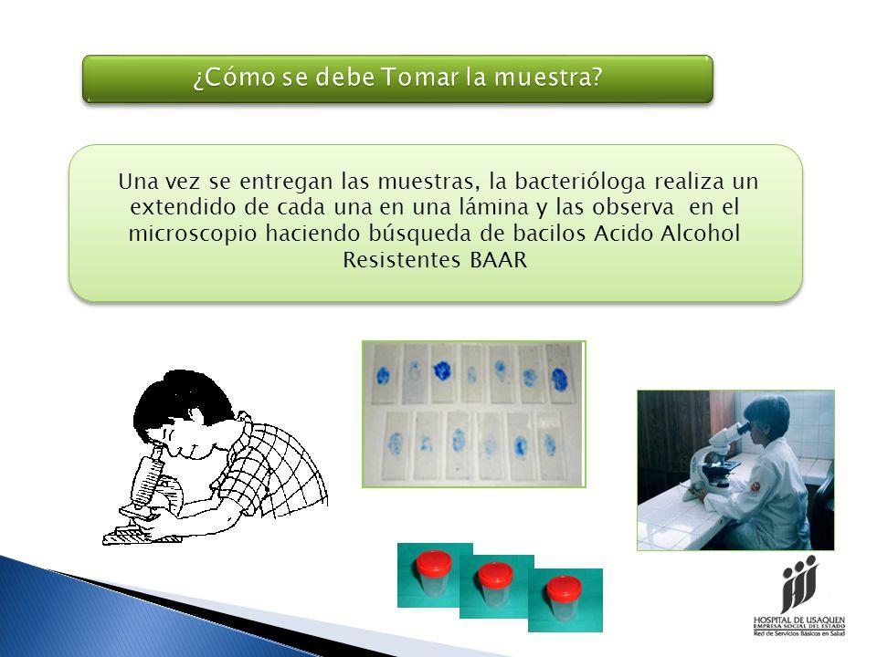 Diagnostico Bacteriológico ¿Cómo se Diagnostica.
