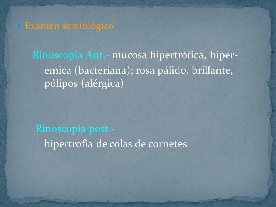 Examen semiológico Rinoscopia Ant.- mucosa hipertrófica, hiper- emica (bacteriana); rosa pálido, brillante, pólipos (alérgica) Rinoscopia post.- hipertrofia de colas de cornetes