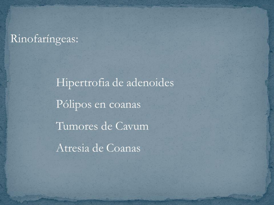 Rinofaríngeas: Hipertrofia de adenoides Pólipos en coanas Tumores de Cavum Atresia de Coanas