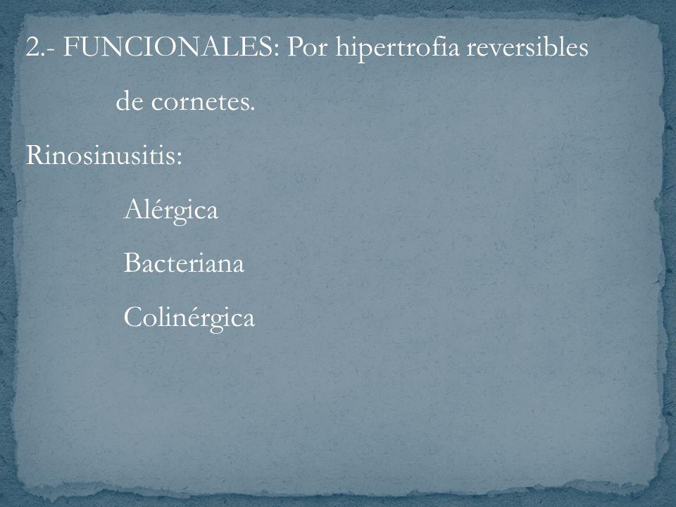 2.- FUNCIONALES: Por hipertrofia reversibles de cornetes. Rinosinusitis: Alérgica Bacteriana Colinérgica