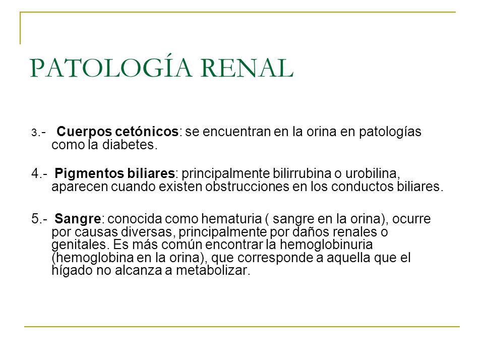 PATOLOGÍA RENAL 3.- Cuerpos cetónicos: se encuentran en la orina en patologías como la diabetes.