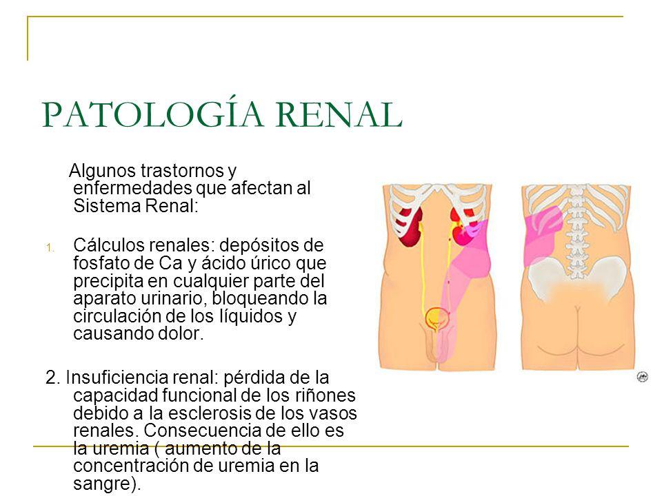 PATOLOGÍA RENAL Algunos trastornos y enfermedades que afectan al Sistema Renal: 1. Cálculos renales: depósitos de fosfato de Ca y ácido úrico que prec