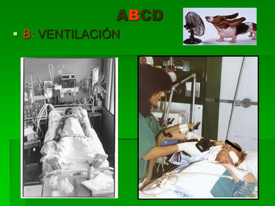 ABCD B: VENTILACIÓN B: VENTILACIÓN