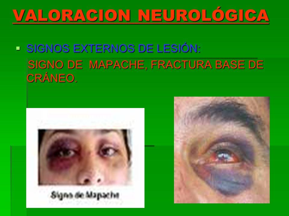 VALORACION NEUROLÓGICA SIGNOS EXTERNOS DE LESIÓN: SIGNOS EXTERNOS DE LESIÓN: SIGNO DE MAPACHE, FRACTURA BASE DE CRÁNEO. SIGNO DE MAPACHE, FRACTURA BAS