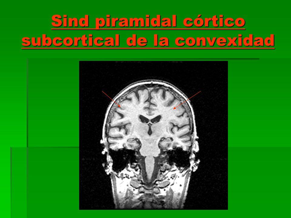 Sind piramidal córtico subcortical de la convexidad