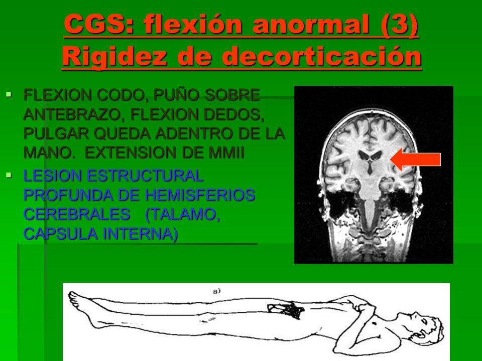 CGS: flexión anormal (3) Rigidez de decorticación FLEXION CODO, PUÑO SOBRE ANTEBRAZO, FLEXION DEDOS, PULGAR QUEDA ADENTRO DE LA MANO. EXTENSION DE MMI