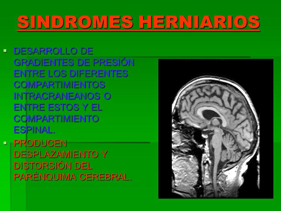 SINDROMES HERNIARIOS DESARROLLO DE GRADIENTES DE PRESIÓN ENTRE LOS DIFERENTES COMPARTIMIENTOS INTRACRANEANOS O ENTRE ESTOS Y EL COMPARTIMIENTO ESPINAL