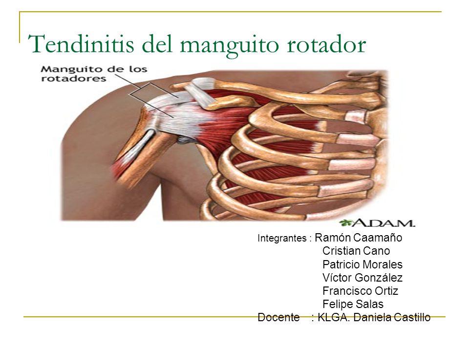 Tendinitis del manguito rotador Integrantes : Ramón Caamaño Cristian Cano Patricio Morales Víctor González Francisco Ortiz Felipe Salas Docente : KLGA.