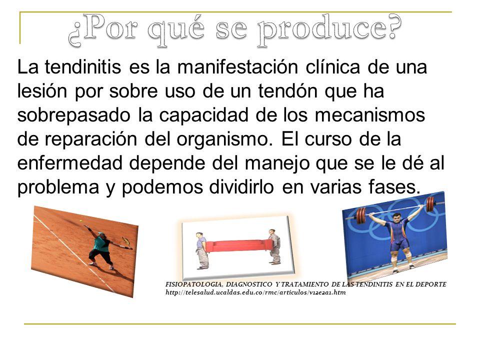 La tendinitis es la manifestación clínica de una lesión por sobre uso de un tendón que ha sobrepasado la capacidad de los mecanismos de reparación del organismo.