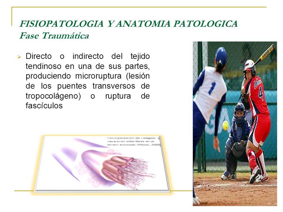 Directo o indirecto del tejido tendinoso en una de sus partes, produciendo microruptura (lesión de los puentes transversos de tropocolágeno) o ruptura de fascículos FISIOPATOLOGIA Y ANATOMIA PATOLOGICA Fase Traumática