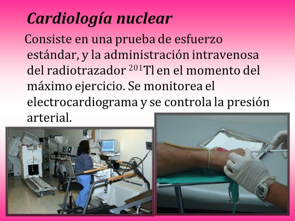 Cardiología nuclear Consiste en una prueba de esfuerzo estándar, y la administración intravenosa del radiotrazador 201 Tl en el momento del máximo ejercicio.