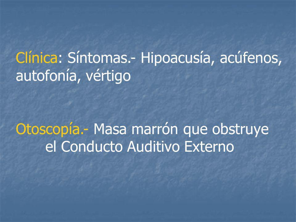 Clínica: Síntomas.- Hipoacusía, acúfenos, autofonía, vértigo Otoscopía.- Masa marrón que obstruye el Conducto Auditivo Externo