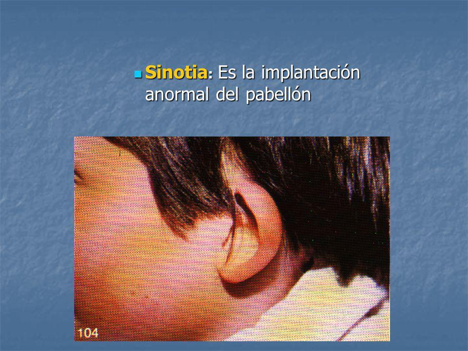 Sinotia : Es la implantación anormal del pabellón Sinotia : Es la implantación anormal del pabellón