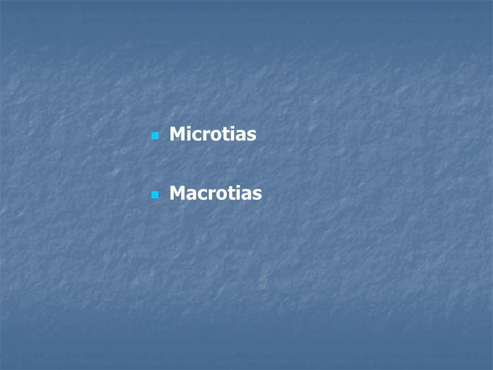 »Fistulas Auris o Coloboma Auris quistes epiteliales, tr: Quirúrgico