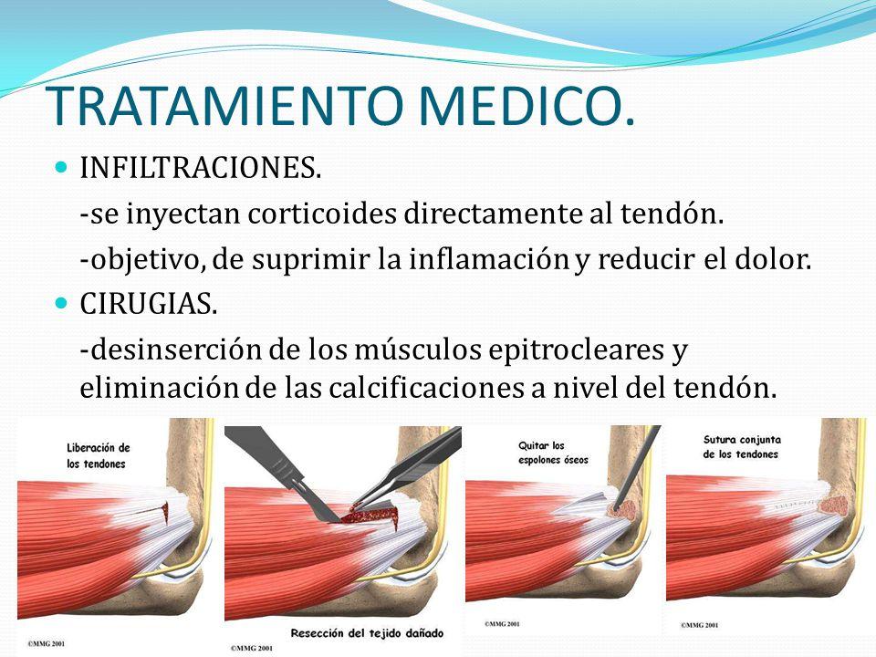 TRATAMIENTO MEDICO. INFILTRACIONES. -se inyectan corticoides directamente al tendón. -objetivo, de suprimir la inflamación y reducir el dolor. CIRUGIA