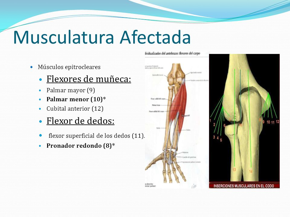 Musculatura Afectada Músculos epitrocleares Flexores de muñeca: Palmar mayor (9) Palmar menor (10)* Cubital anterior (12) Flexor de dedos: flexor supe